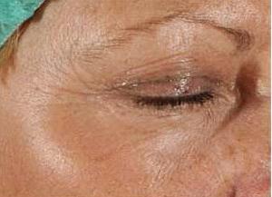 Лазерное омоложение кожи в казани Криолиполиз Базовый проезд Чебоксары