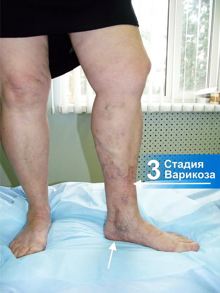 На ногах по венам появляются синяки
