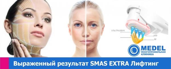 СМАС Экстра лифтинг