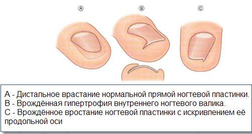 Бифоназол против грибка ногтей