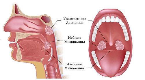 лечение насморк у грудничка