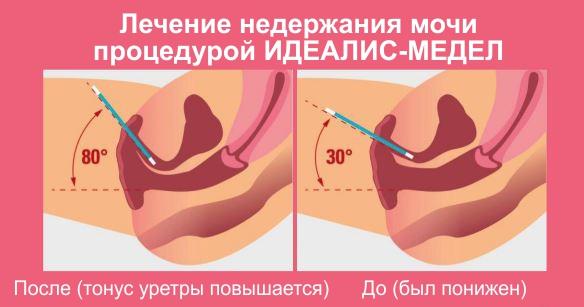 Недержание мочи при цистите у женщин лечение